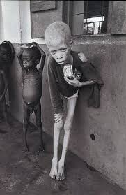 starving white child.  White To Starving White Child