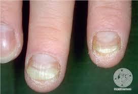 Psoriasis arthritis, bilder der Gelenk-Schuppenflechte