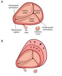 Valve Progressive Size Chart Cardiac Interventions Today Transcatheter Tricuspid Valve