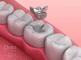 Dental Inlay Inlay Vs Filling Differences Between Dental Inlays And