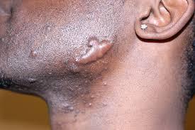 ingrown hair scar page 1 line 17qq com