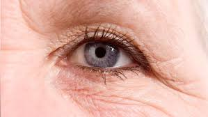 ways to make your eyes look younger