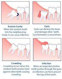 I've asked the local dentists the cost of a single tooth extraction without insurance and in total it would be almost 7 thousand dollars to remove them all. Wisdom Tooth Extraction Houston Tx Summit Dental Centers