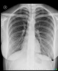 Pneumothorax Radiology Reference Article Radiopaedia Org