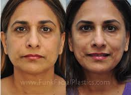 restylane for filler under the eyes and dysport for the upper face filler for under the eye bags significantly improves the appearance and provides a more