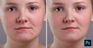 how to remove acne and skin blemishes in photo tutorial