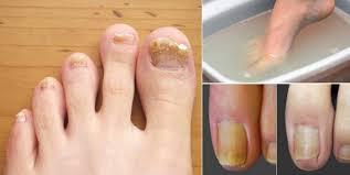 simple home remedy to remove toenail fungus