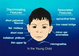"best fetal alcohol syndrome images fetal alcohol  how the abuse of alcohol devastates the health of foetus and ""fetal alcohol syndrome"""