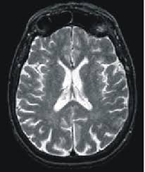 Mri- scanner : definition of mri- scanner and synonyms of mri- scanner (Dutch)