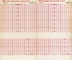 Ekg Ekg Graph Paper From Decommissioned Hospital Adam Brock