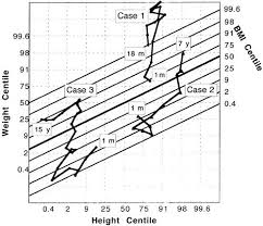 growth study sempé et al 1979 followed from 1 month of age selected to show substantial changes in weight height and bmi centile through childhood