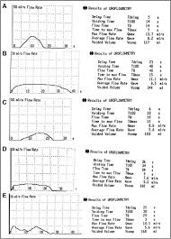 The Postoperative Uroflow Patterns A A Bell Shaped Curve