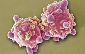 Vähifoorum : vaata teemat - haigestusin leukeemiasse