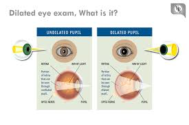 Dilated Eye Exam What Is It A Dilated Vision Exam Allows
