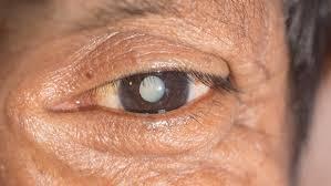 eye surgery cost compare dubai vs india