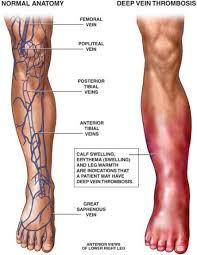 blood clot in leg symptoms birth control