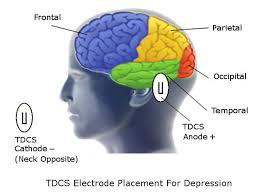 10 Veracious Tdcs Placement Chart
