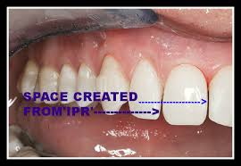 teeth shaving before and after. with all braces you will need to wear an essix retainer full time for the initial few months after your teeth shaving before and