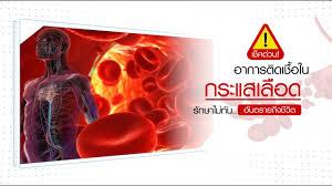 เช็คด่วน อาการติดเชื้อในกระแสเลือด