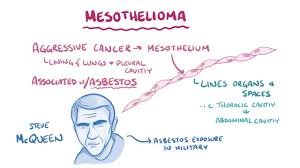 In stage 4 mesothelioma, the cancer has distant metastasis, meaning it has spread to distant parts of the body. Mesothelioma Osmosis