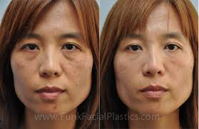 restylane for smile lines and under the eyes by houston plastic surgeon dr funk