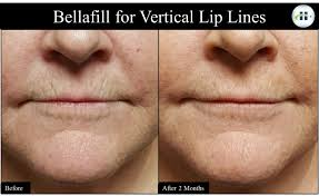 for wrinkles around the mouth