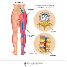 Reflexology Pressure Points Chart 4 Simple Acupressure Points To Treat Sciatica Nerve Pain At Home