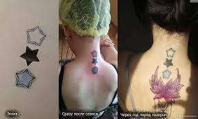 удаление татуировок лазером удаление и кавер цветной татуировки