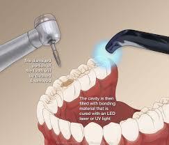Uv Light Tooth Filling Dental Fillings
