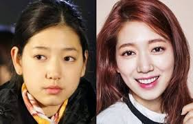 did park shin hye get plastic surgery nose job