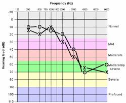 Hearing Loss Chart Blocked Ear Wax Ringing