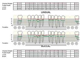 Dental And Periodontal Charting Teaching Periodontal Pocket Charting To Dental Students A