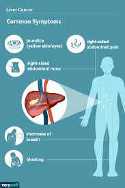 Liver Cancer: Signs, Symptoms, and Complications