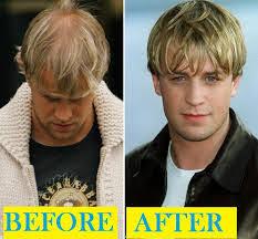 Male Pattern Baldness In Women Enchanting Balding Solution For Men And Women