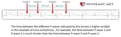 Types Of Arrhythmia Chart Sinus Arrhythmia What Is It