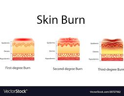Skin Burn Three Degrees Of Burns Type Of Injury