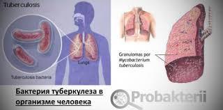 Бактерии l формы из чего состоят как образовываются лечение Бактерия туберкулеза в организме человека