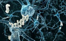 Image result for The Controversial Doctor Who Claims He Can Reverse Alzheimer's