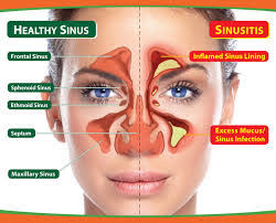 5 Best Homeopathic medicines for Chronic Sinusitis - Homeopathic ...