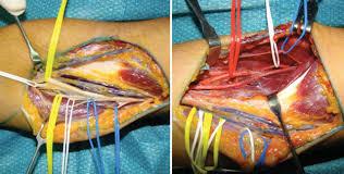 Técnicas de transferencia nerviosa en lesiones del miembro superior