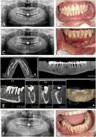 numb chin with mandibular pain or