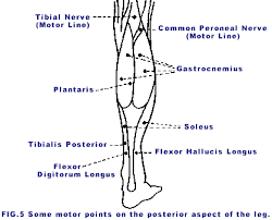 50 Cogent Muscle Motor Point Chart