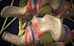 Whats A Facet Facet Syndrome A Common Cause Of Neck Back Pain