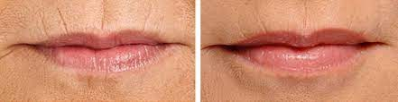 best treatment for lip lines