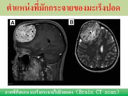 มะเร็งปอด โรคภัยใกล้ตัว ป้องกันดูแลรักษาด้วยวิธีแพทย์จีน - Huachiewtcm