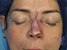 nose reconstruction 6 skin cancer and