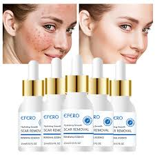 <b>EFERO Face</b> Serum for Acne Removal <b>Face Cream Whitening</b> ...