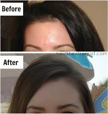cure acne my before and after picture about cod liver oil