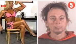 personas deformes por esteroides