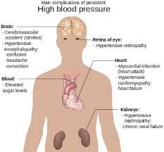Hypertension Headache Location Chart Hypertension Wikipedia